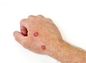 cryotherapy removed warts on hand