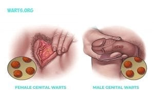 genital warts can appear on both vagina penis and anus