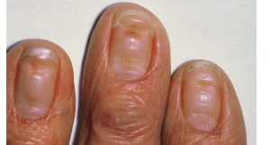 Fingernail Problems on hands