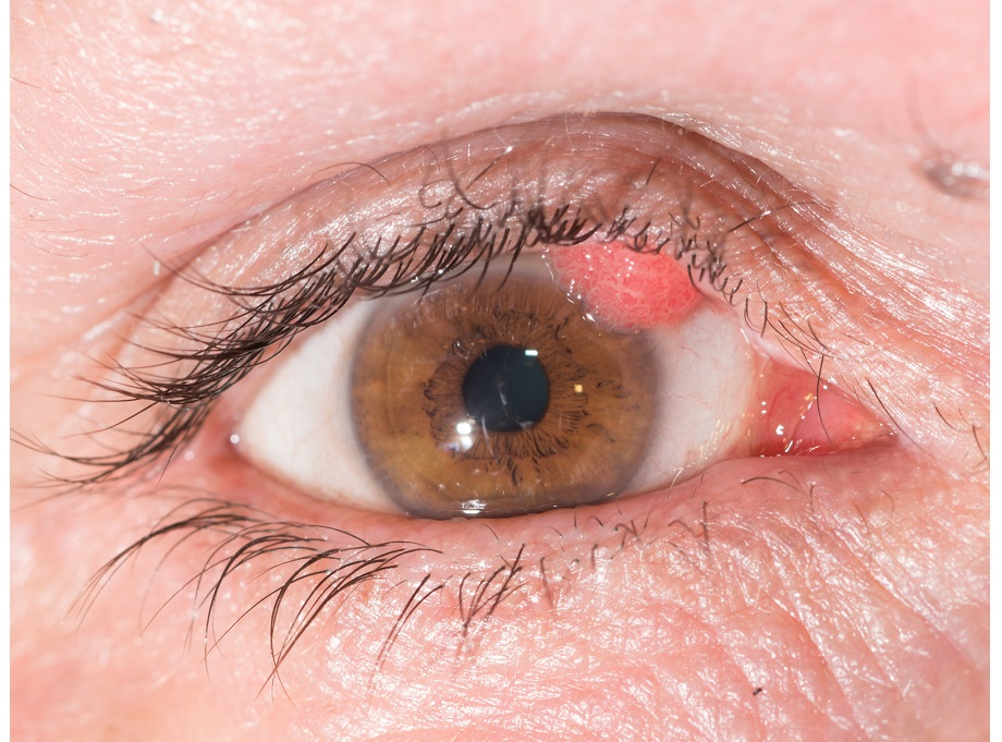Filfiform Warts Cause And Treatments For Face And Eye Wart